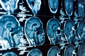 brain-heal
